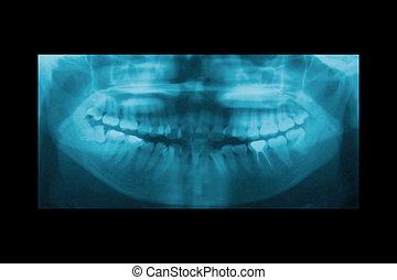 ortodonzia, mascella, dentale, panoramico, ortopedia, raggi ...