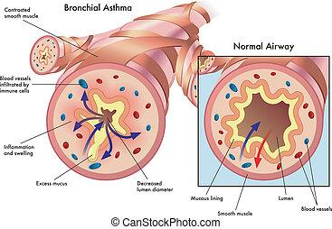 oskrzelowy, astma