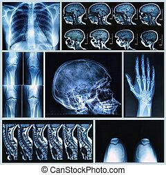 ossa, radiografia, umano