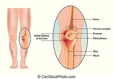 osso joelho, edema