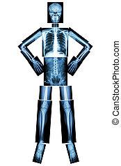 osso umano, stare in piedi, e, akimbo, (x-ray, intero,...