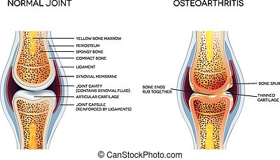 Osteoarthritis and normal joint anatomy