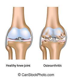 osteoarthritis, di, tocchi col ginocchio articolazione,...