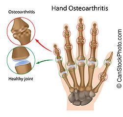 osteoarthritis, közül, a, kéz, eps8
