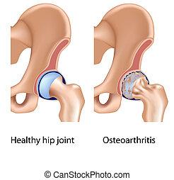 osteoarthritis, közül, csípő közös, eps8
