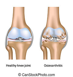 osteoarthritis, közül, térdizület, eps10