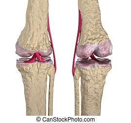 osteoarthritis, :, knä