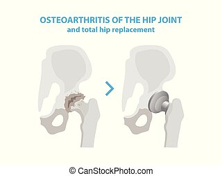 Osteoarthritis of the Hip Joint and Hip Replacement Surgery medical infographic elements isolated on white background. Joint with arthritis and replaces it with an artificial joint made from metal.