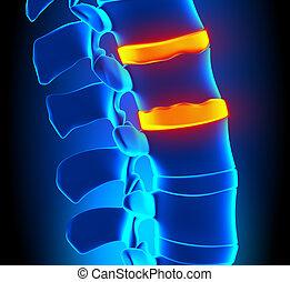 osteophyte, degenerat, disco, formação