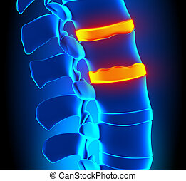 osteophyte, degenerat, disco, formazione