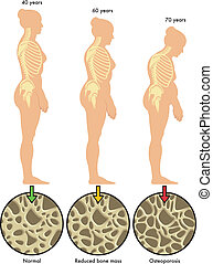 osteoporosis 3 - medical illustration of the effects of ...