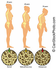 osteoporosis 3 - medical illustration of the effects of...