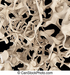 Osteoporosis bone structure - Scientific illustration -...