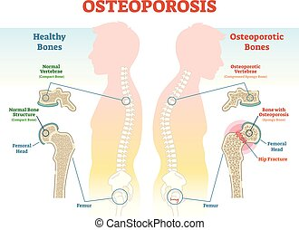 Osteoporosis examples vector illustration diagram with bone...