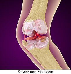 Osteoporosis of the knee joint, Medically accurate 3D...