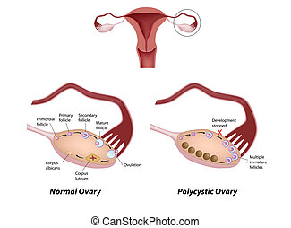 ovaire, polycystic, eps8, normal