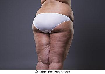 overgewicht vrouw, met, dik, benen, en, zitvlak, zwaarlijvigheid, vrouwelijk lichaam
