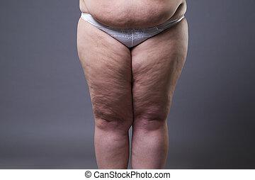 overgewicht vrouw, met, dik, benen, zwaarlijvigheid, vrouwelijk lichaam