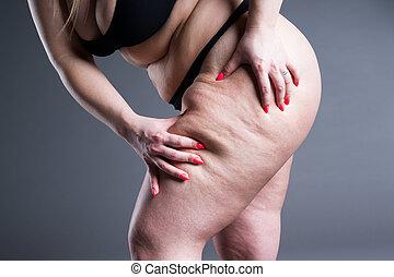 overgewicht vrouw, met, dik, dijen, zwaarlijvigheid, vrouwlijk, benen