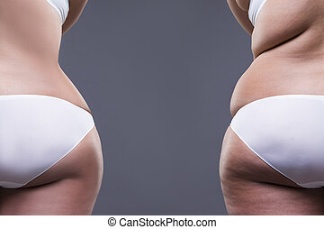 Overweight woman with fat legs and buttocks, before after...