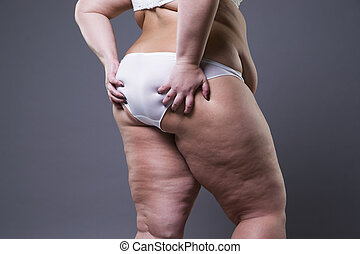 Overweight woman with fat legs and buttocks, obesity female...