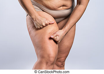 Overweight woman with fat thighs, obesity female legs