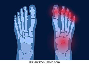 pé, artrite, conceito
