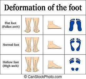 pé, deformação