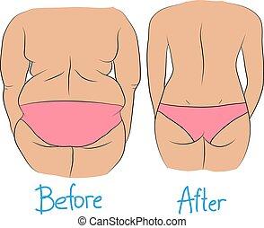 pérdida, mujer, peso, después, espalda, grasa, antes