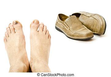 pés, injuried