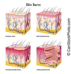 płonie, skóra