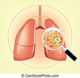 płuca, z, zarodki, i, bacteria