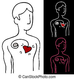 Pacemaker - An image of a man with a pacemaker device...