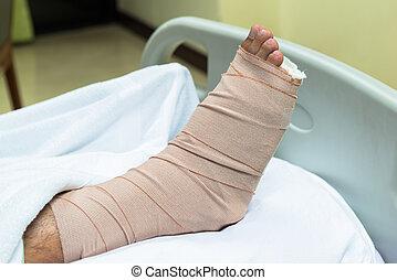 paciente, con, pierna rota, en, molde