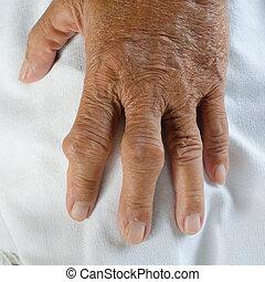 pacientes, gout., dedos