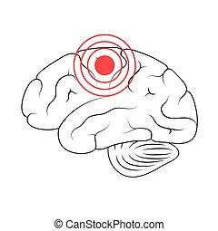 Pain Brain Illustration - Vector isolated illustration of ...