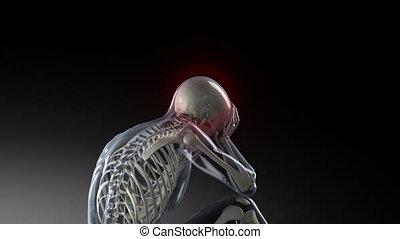 Pain from backbone to head