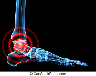 pain in ankle - 3d rendered x-ray illustration of a skeletal...
