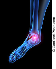 pain in foot - 3d rendered x-ray illustration of highlighted...