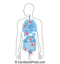 Pain in human body