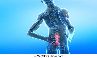 Pain in spine - medical concept