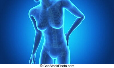 Medical 3d animation of a female with acute pain in the back