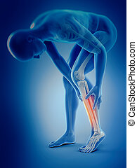pain in the calf - medically accurate 3d illustration of...