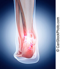 painful achilles tendon - medical 3d illustration of a...
