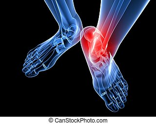 painful ankle illustration - 3d rendered illustration of...