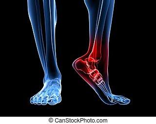 painful ankle illustration - 3d rendered illustration of...