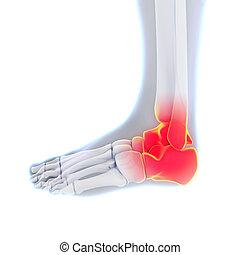 Painful Ankle Illustration