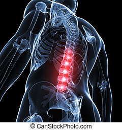 Painful back - 3d rendered illustration of a painful back