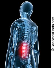 painful back - 3d rendered x-ray illustration of human ...