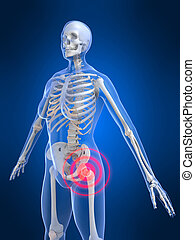 painful hip - 3d rendered illustration of a highlighted...